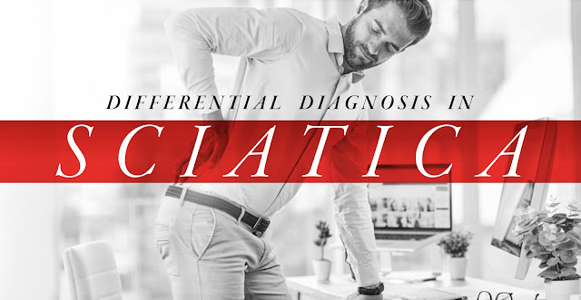 Differential Diagnosis in Sciatica Part 1 | El Paso, TX Chiropractor