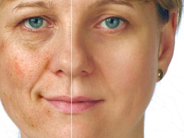 Manchas no rosto- ácido kójico, ácido glicólico, ácido retinóico