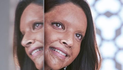 Chhapaak: Release Date, Trailer, Cast, Budget, Review, Song, News and Real Story