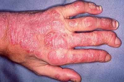 artritis psoriásica fotos