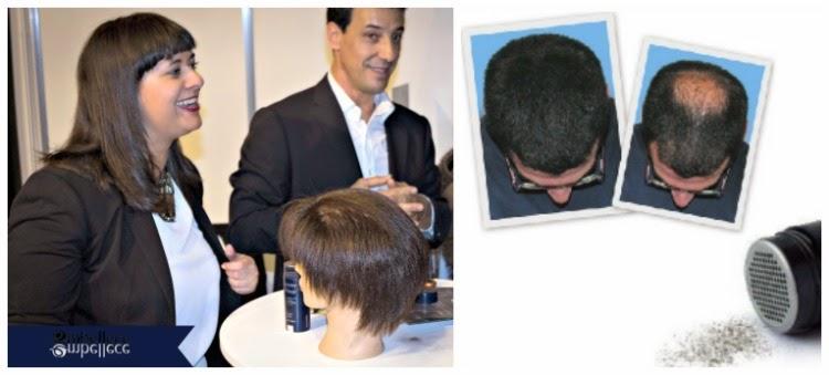 productos para la alopecia