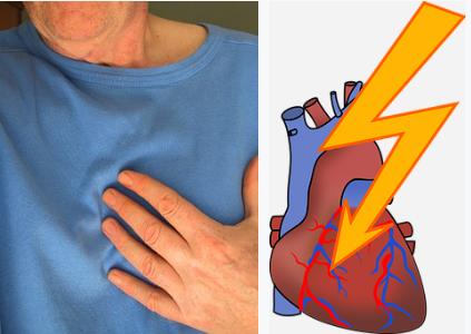 إيقاعات القلب غير الطبيعية (عدم انتظام ضربات القلب