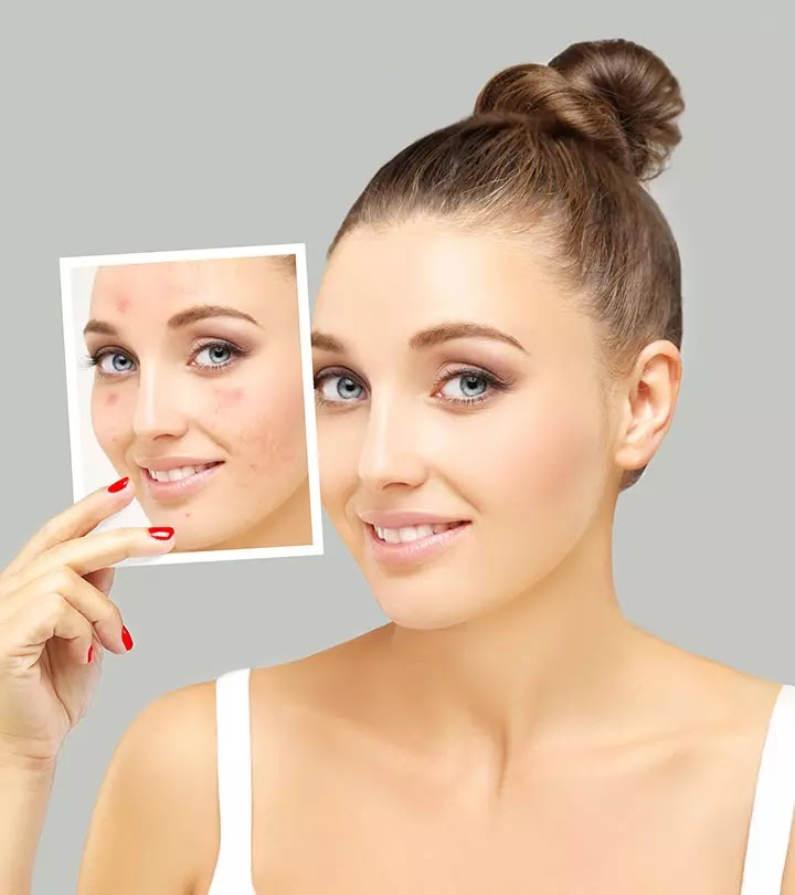 How to Remove Pimples Naturally and Permanently in Hindi