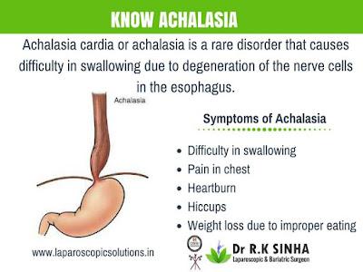 http://www.laparoscopicsolutions.in/Achalasia-Cardia.html