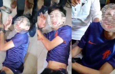 Ini Video Pengakuan Pelaku Penusukan Syekh Ali Jaber, Ada yang Nyuruh
