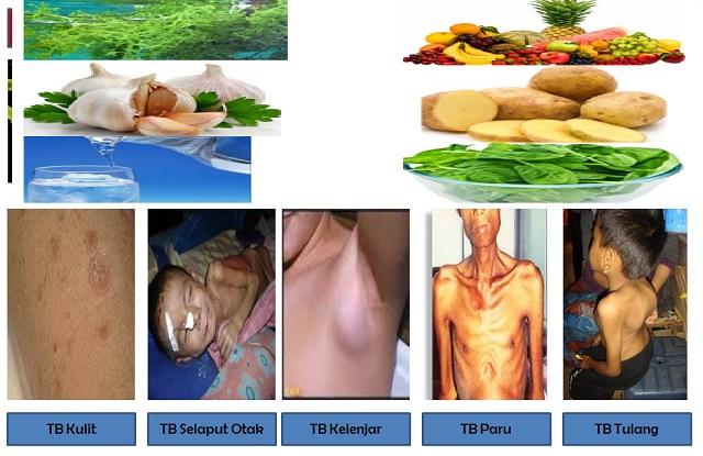 analisis diet pada pasien pasca bedah sectio caesarea di rsud