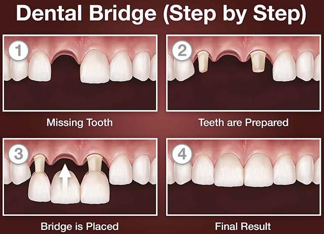 dental bridge procedure steps