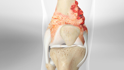 osteosarcoma treatment