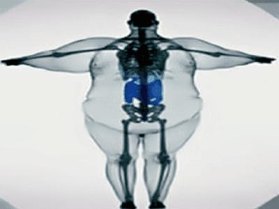 Gambar Bahaya Jika Penderita Tekanan Darah Tinggi Kelebihan Berat Badan