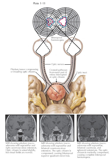 EFFECTS OF PITUITARY TUMORS ON THE VISUAL APPARATUS  The optic chiasm lies above the diaphragma sellae. The most common sign that a pituitary tumor has extended beyond the confines of the sella turcica