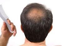 4 Cara Mengatasi Rambut Rontok Menurut dr. Reisa Broto Asmoro