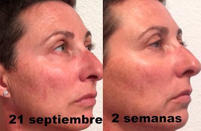 Elisabeth vargas cosmetic, alta cosmética, cosmética profesional, tratamiento regenerador antiaging, tratamiento regenerador antiedad, tratamiento regenerador,