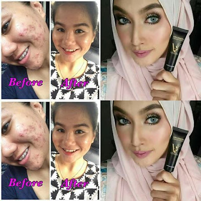 TESTIMONI PENGGUNA VEVIOUS ULTRA CORRECTION
