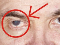 Tidak Disangka ! 3 Kebiasaan Yang Sering Dilakukan Ini Ternyata Bisa Merusak Mata