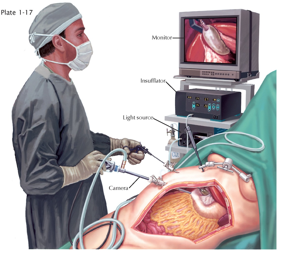 Laparoscopic Peritoneoscopy