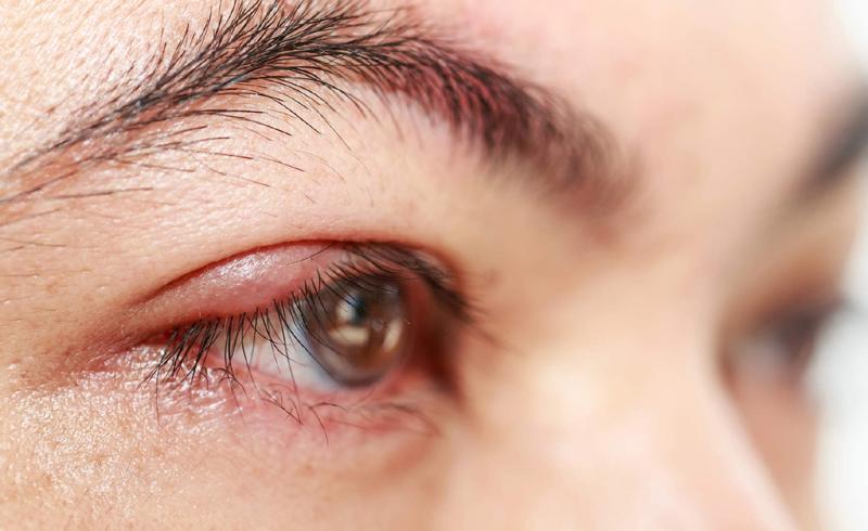 Eye Health , Health