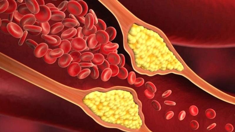 Sadece 'Günde Üç Gram' Kandaki Kolesterol Seviyesini Düşürebilir