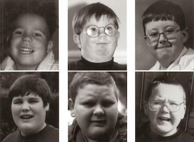 obezitatea genetica