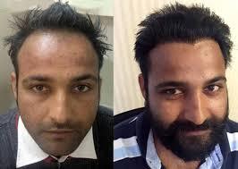 saç ekimi öncesi ve sonrası foto 30
