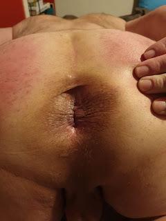 Mon anus dilaté