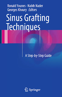 Sinus Grafting Techniques