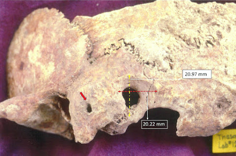 Researcher discovers early, complex brain surgery in ancient Greece