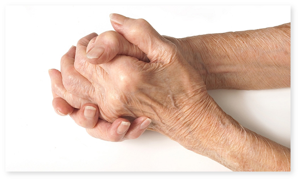 Care sunt cauzele osteoartritei? Ce articulatii sunt atacate de osteoartrita? Tratamentul farmacologic al osteoartritei