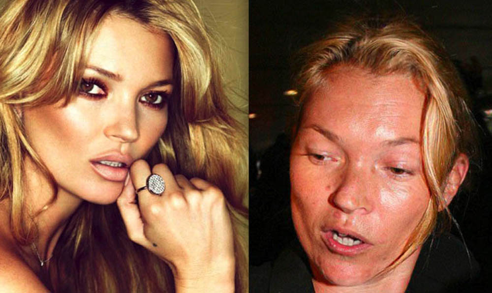 Kate Moss Drugs Before And After