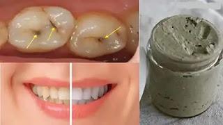 وصفة لتبيض الأسنان في يوم واحد