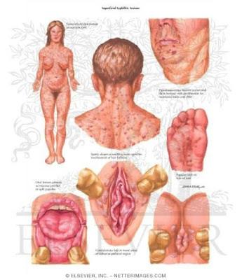 gejala penderita sipilis