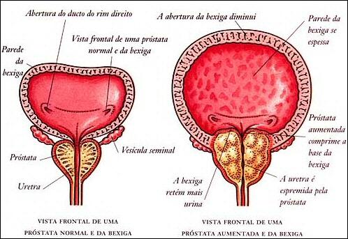area adenomatosa prostata