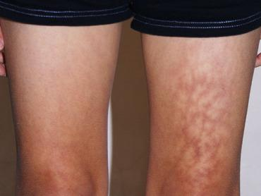 Toasted Skin Syndrome' Warning For Excessive Laptop Users