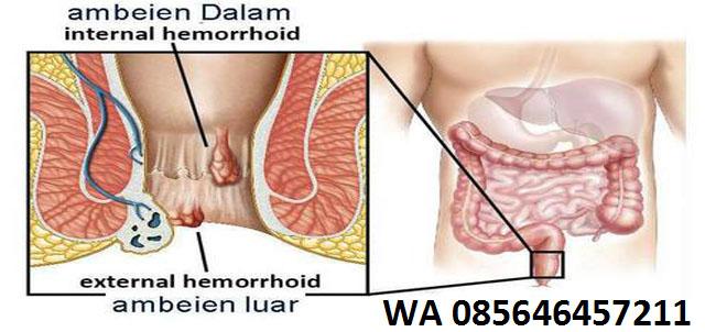 Penyebab Ambeien (Hemoroid) Tak Kunjung Sembuh