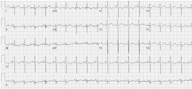 right ventricular hypertrophy with severe pulmonary hypertension