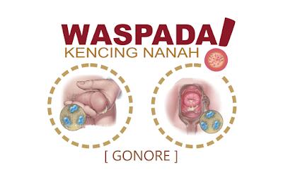 Bahaya Kencing Nanah Gonore Jika Tidak Diobati