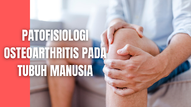 """Patofisiologi Osteoarthritis Pada Tubuh Manusia Patofisiologi Osteoarthritis Patofisiologi Osteoarthritis berkembang dengan pengaruh dari interaksi beberapa faktor dan hal ini merupakan hasil dari interaksi antara sistemik dan faktor lokal. Penyakit ini merupakan hasil dari beberapa kominasi faktor resiko, diantaranya adalah :  Usia Lanjut Mal Alignmen Lutut Obesitas Trauma Genetik Ketidak seimbangan proses fisiologis dan peningkatan kepadatan tulang  Bukti bahwa obesitas itu sindrom yang komplek yaitu adannya ketidak normalan aktivasi jalur endokrin dan jalur pro inflamasi yang mengakibatkan perubahan kontrol makanan,ekspansi lemak, dan perubahan metabolik. Selain itu kasus Osteoarthritis juga disebabkan oleh faktor kelainan struktural yang ada di sekitar persendian.  Pada kartilago, terdapat kerusakan yang diakibatkan oleh cacat kolagen tipe 2 dan beberapa kondropati lainnya, dimana mutasi akan mempengaruhi protein pada kartilago yang terkait, sehingga menyebabkan osteoarthritis berkembang semakin cepat. Pada struktur ligamen, terdapat kerusakan pada ACL atau cedera gabungan yang melibatkan ligamen ko lateral, sehingga ndapat meningkatkan resiko kehilangan tulang rawan.  Kemudian pada struktur meniskus, terdapat ekskrusi meniskus, yaitu kondisi hilangnya tulang rawan yang diakibatkan oleh penyempitan ruang sendi dalam waktu yang lama dan terabaikan, hal tersebut juga merupakan penyebab utama OA. Kemudian pada struktur tulang, terdapat trauma tulang atau predispoisisi yang menyebabkan tekanan menjadi abnormal.    Nah itu dia bahasan dari patofisiologi osteoarthritis pada tubuh manusia, melalui bahasan di atas bisa diketahui mengenai patofisiologi osteoarthritis pada tubuh manusia. Mungkin hanya itu yang bisa disampaikan di dalam artikel ini, mohon maaf bila terjadi kesalahan di dalam penulisan, dan terimakasih telah membaca artikel ini.""""God Bless and Protect Us"""""""