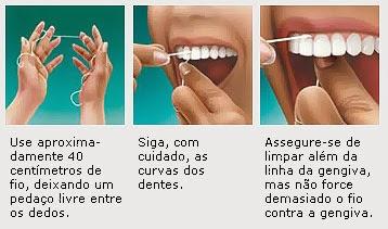 6620f6d34 Tirando algumas dúvidas com Cirurgião Dentista Sandro Neves! O fio dental  ...
