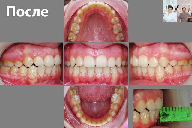 Пять фото разных проекций пациента после лечения прогнатического прикуса