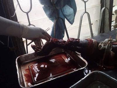 Man On Hospital Bed Cut By Machette