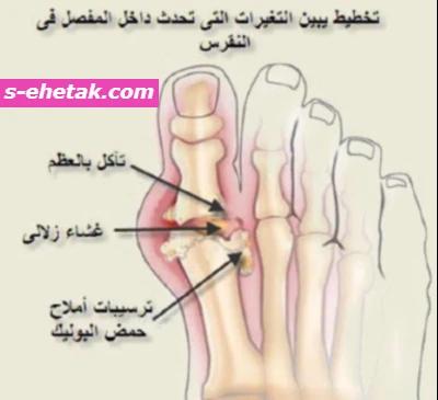 أعراض النقرس في مشط القدم
