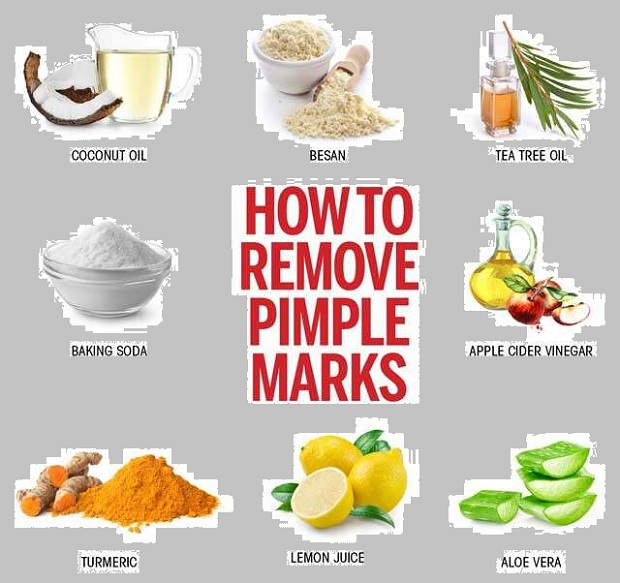 To remove pimples natural methods 4 Natural
