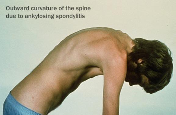 Spine Curvature In Ankylosing Spondylitis