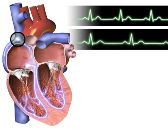Người có tiền sử mắc căn bệnh tim mạch không nên xông hơi