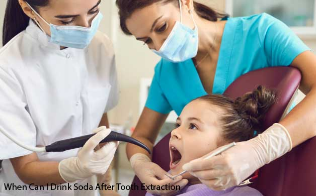 When Can I Drink Soda After Tooth Extraction and Carbonated Drinks