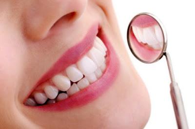 Tips Merawat Kesehatan Gigi Secara Alami