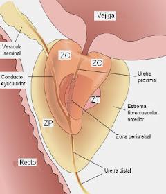 prostata primer grado