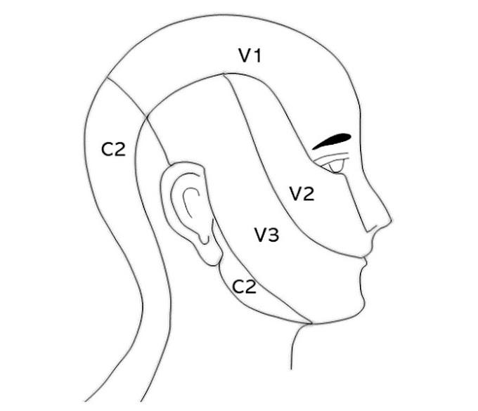 PDF: Neuralgia del Trigémino: Manifestaciones clínicas y diagnóstico