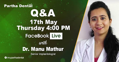 Partha Dental Facebook Live event with Dr.Manu Mathur, Senior Implantologist on 17th May 2018 at 4PM