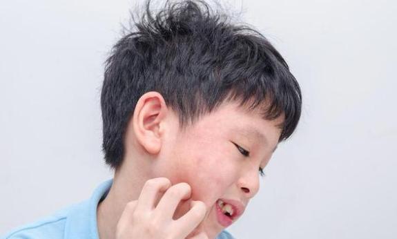 Cara Mengatasi Alergi Anak dengan Mudah