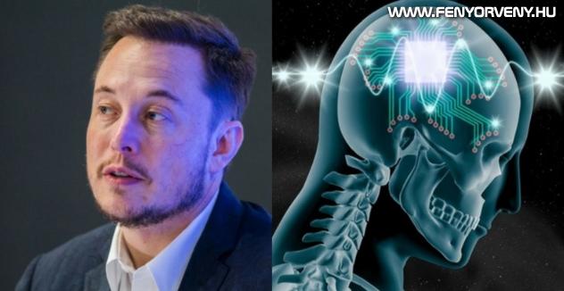 """Az emberi agy és a számítógép közötti """"ideghálózatot"""" fejleszt Elon Musk cége"""